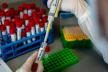 Коронавірус на Франківщині: 600 підтверджених випадків за добу