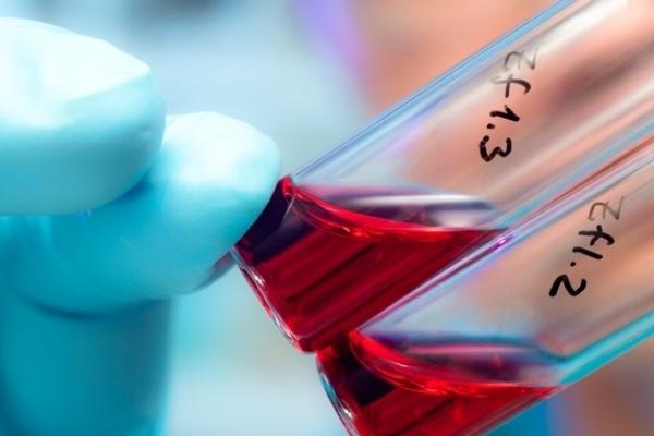 На Франківщині все більше підлітків хворіє на ВІЛ/СНІД, – фахівці