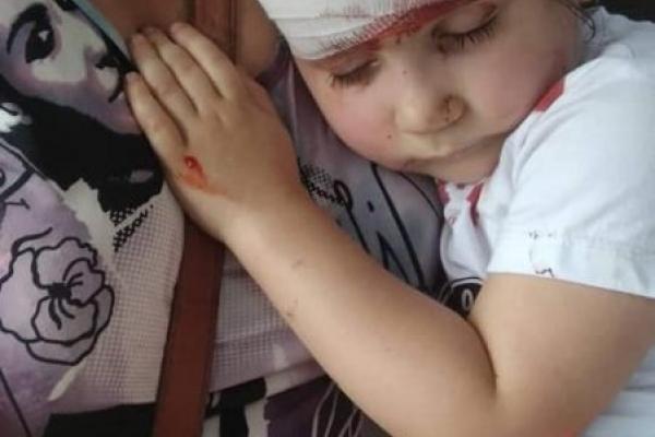 Нещасний випадок на Прикарпатті: гойдалка вдарила дитину. Дівчинка в реанімації (Фото)