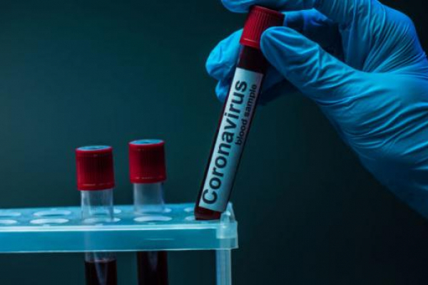 Коронавірус на Прикарпатті: виявили ще 123 випадки, 50 осіб одужали