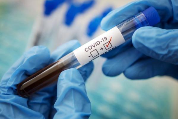 COVID-19 на Прикарпатті: за минулу добу виявили 583 випадки інфікування